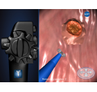 ENDOSCOPY 3D