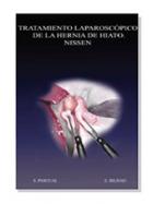 Cirugía laparoscópica del reflujo gastroesofágico. Técnica de nissen.