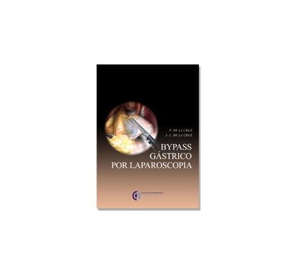 Bypass gástrico por laparoscopia